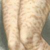 Папулезная крапивница