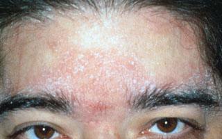 Себорейная экзема на лице