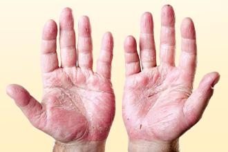 Что такое экзема рук?