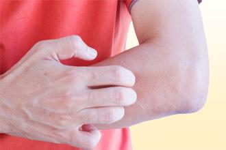 Причины аллергической экземы