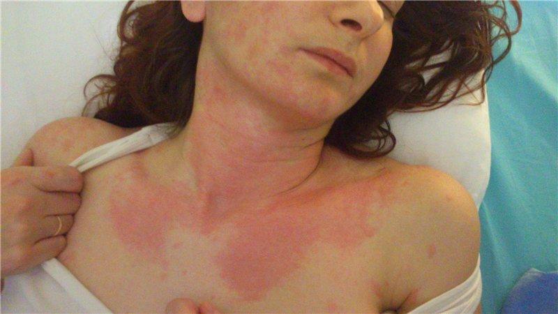 Признаки тепловой крапивницы на шее и груди