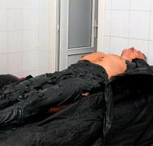 Грязевые ванны от кандидозного простатита