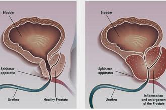 Больная и здоровая простата