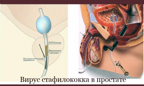 Вирусы в уретре и простате